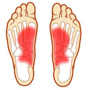 treatment plantar fasciitis exercises